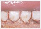 レーザー治療の症例6