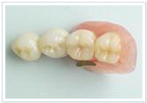 リーゲルテレスコープ義歯