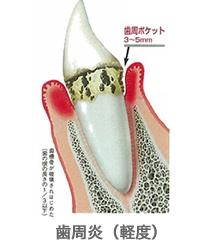 軽度~中等度の歯周病