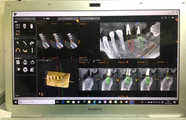 インプラント手術は怖いと感じる方が多いです。術前にCTなどで診査しシュミレーションを行うことで安心に手術を受けることができます。